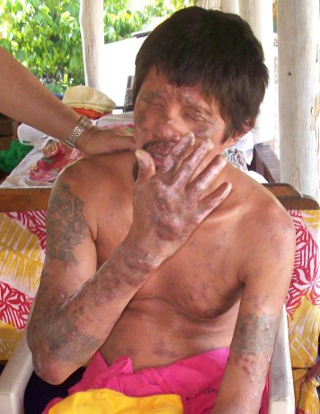 This poor man didn't realise there was a cure for leprosy, so he suffered for 14 years before receiving treatment. He is now almost completely blind and has severely deformed hands.